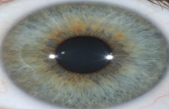 Iridology Iris